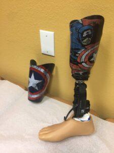 Bionic Feet & Knees Las Vegas