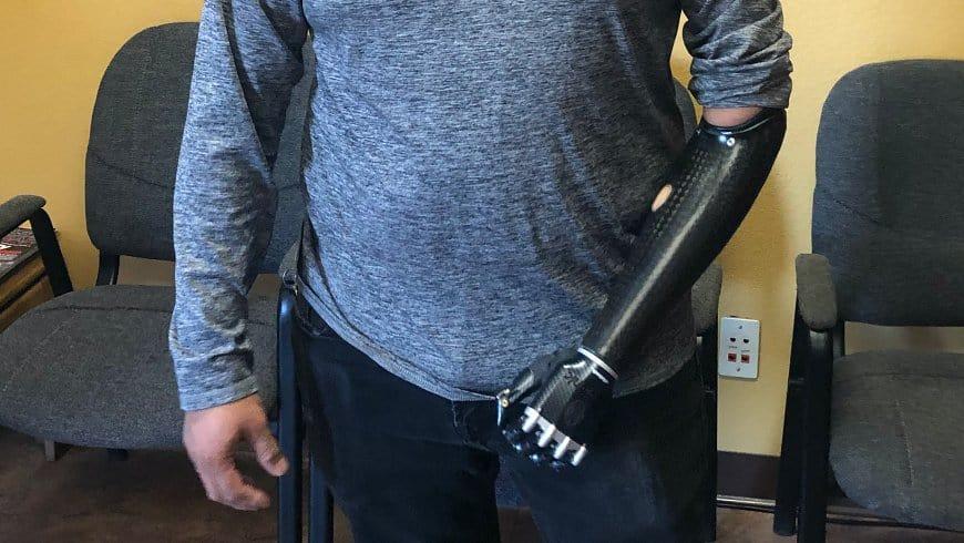 Custom Arm Prosthetics Vegas
