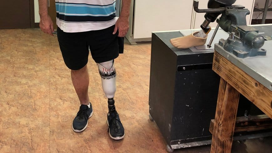 Prosthetic Feet Las Vegas