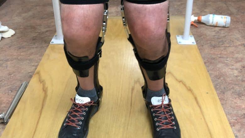 Hip Knee Ankle Foot Orthoses (HKAFO)
