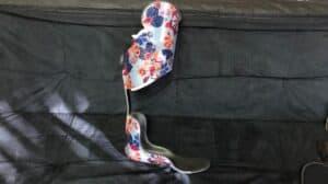 Knee Ankle Foot Orthotics (KAFOs)
