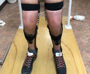 Orthotic Leg Brace