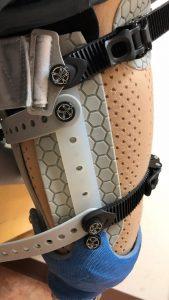 Prosthetic Closeup