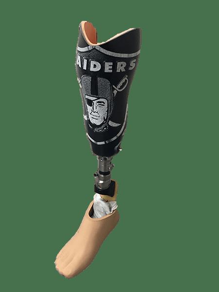 Raider Prosthetic Leg